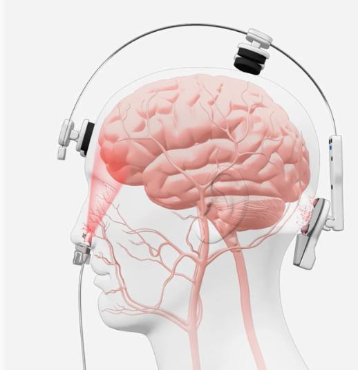 Транскраниальная фотобиомодуляция мозга